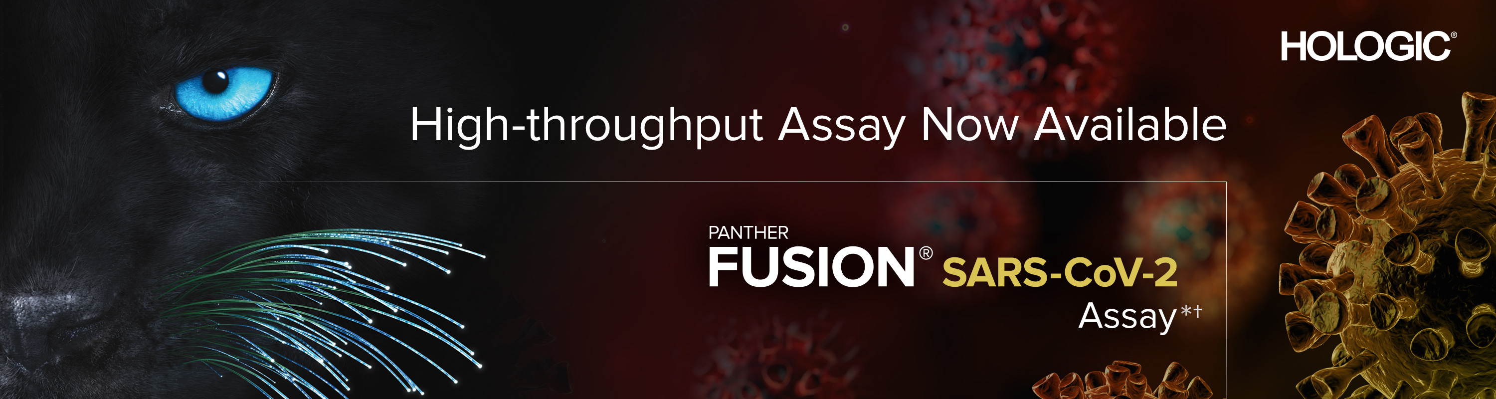 New SARS-CoV-2 assay available for Hologic Panther Fusion