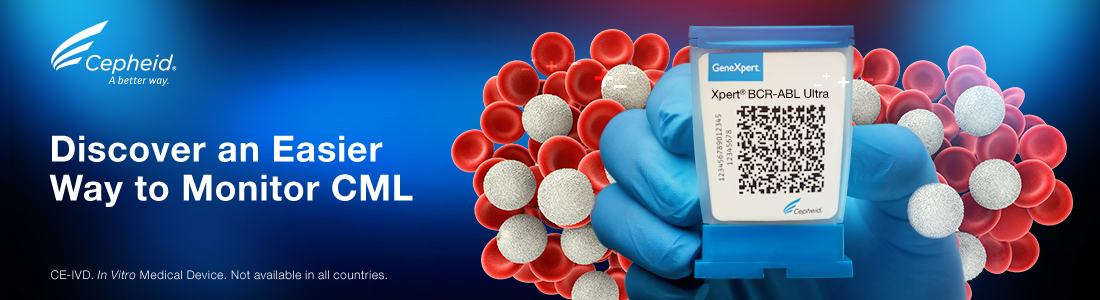 Discover an Easier Way to Monitor CML