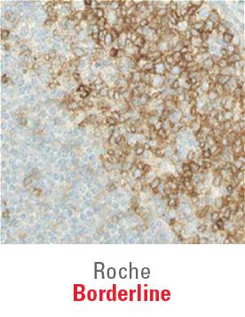 Roche Borderline Ready To Use