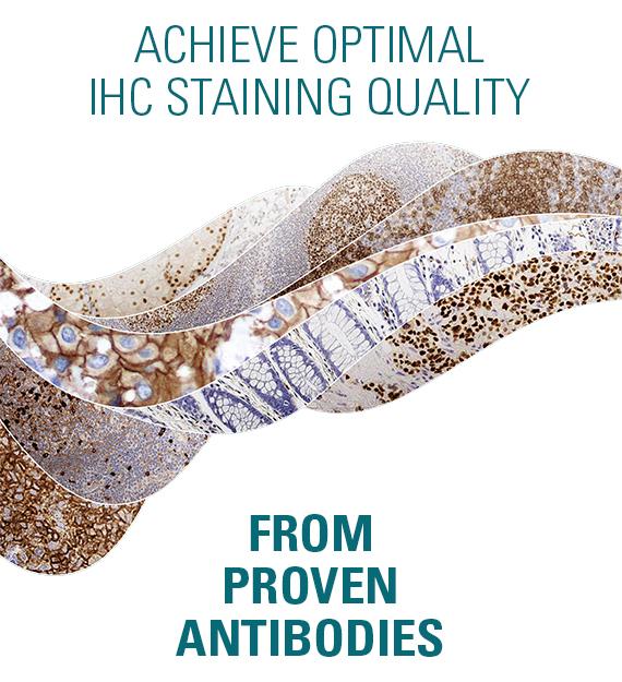 Novocastra HD IHC Staining Quality
