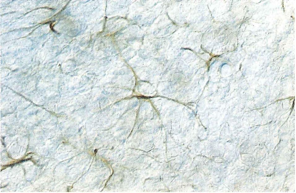 ラット小脳の顆粒状層に見られるGFAP陽性の星状膠細胞